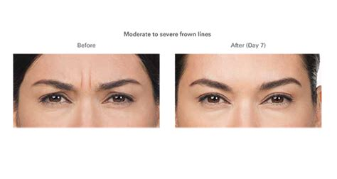 hide natural frown makeup for frown lines style guru fashion glitz