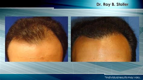 new technology in hair restoration 2014 hair transplant for receding hairline new york city nyc