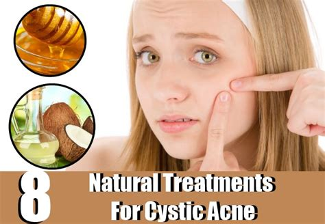 top three homeopathic remedies for acne homeopathic acne 8 natural treatments for cystic acne hoe o treat cystic