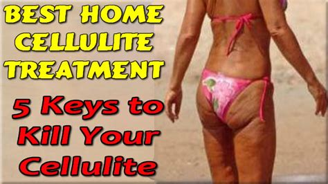 best cellulite remedies at home cellulite treatment www pixshark images