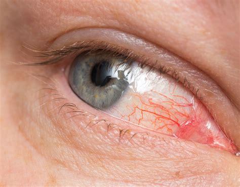 Krankheiten Bei 4231 by 戴隱形眼鏡 眼球布滿血絲 眼睛紅 大紀元