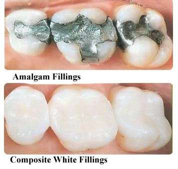 How To Detox Metals With Metal Fillings Still In by Mercury Is This Heavy Metal And A Poison Should We Still