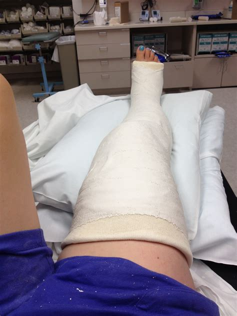 broken leg 8 most awkward searches on your jaws may drop stories of world