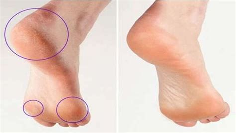Natural Ways To Sleep Better 15 easy ways to remove calluses on feet fast