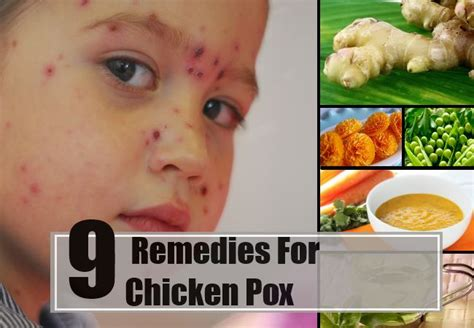 best home remedies for chicken pox treatments