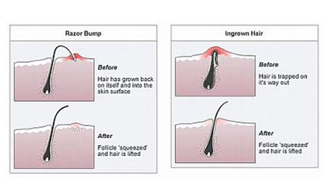 pubic hair to look like a how to remove ingrown hair geek loves health