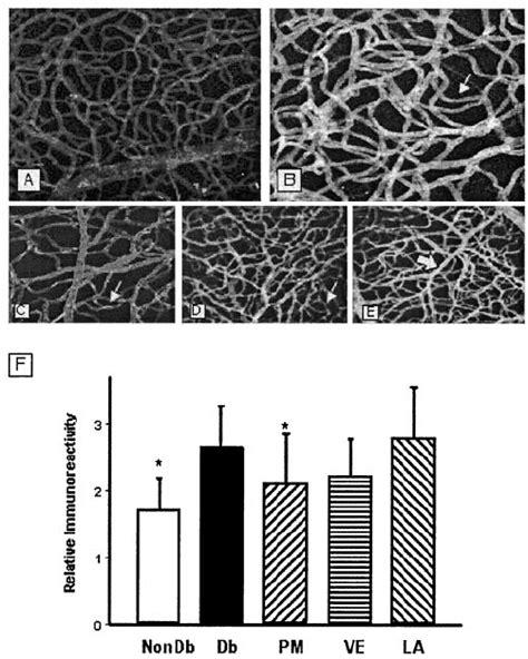 laminin basement membrane fig 2 capillary basement membrane associated laminin is