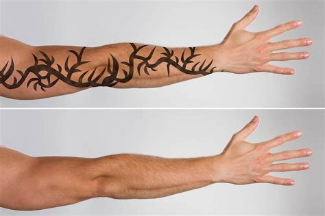 tattoo removal orange county ca how can patients help optimize their removals