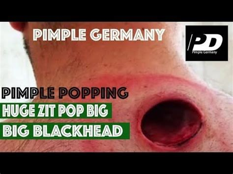 7 Reasons To Not Pop A Pimple by Zit Pop Big Blackhead Removal Pimple Popping At Home