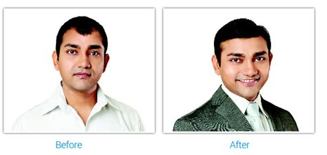 hair transplantation in mumbai reviews hair transplant reviews mumbai om hair