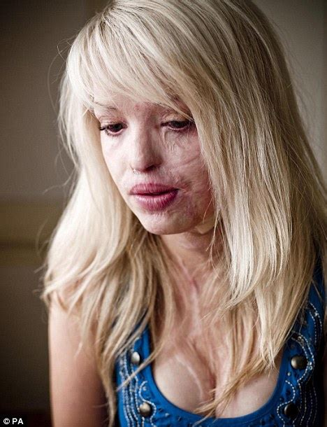 how did katie get her scar katie piper acid attack victim bravely shows her face