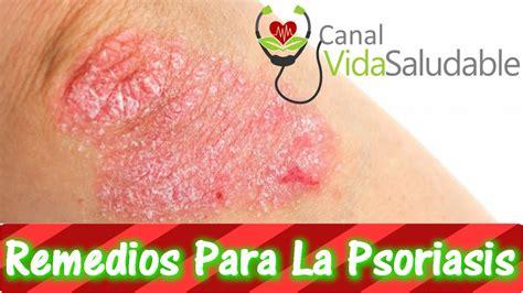 remedios naturales para enfermedades inediacom remedios caseros para la psoriasis youtube