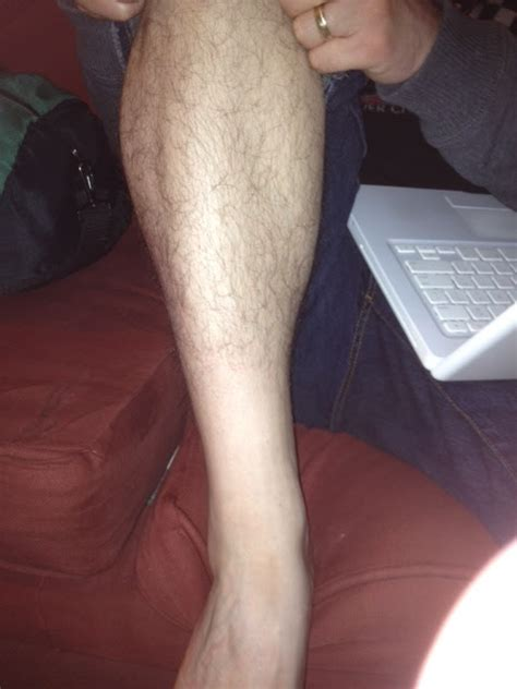 Losing Leg Hair On Men | male pattern baldness newhairstylesformen2014 com
