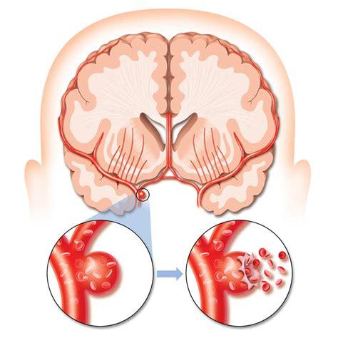 a stroke stroke major causes