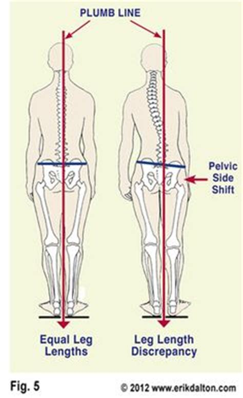 Plumb Line Assessment by Posture On Scoliosis Chiropractic And