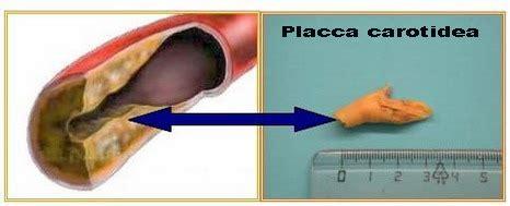 vasi sovraortici check up vascolare centro salute poliambulatori di