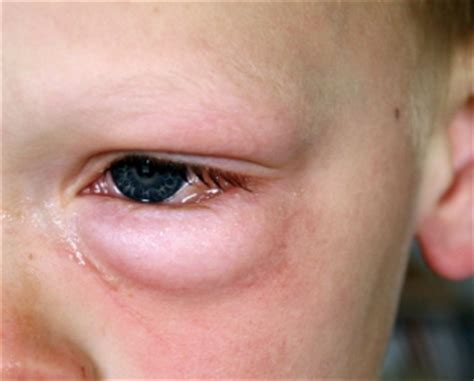 eye swollen swelling eye cheekbone with redness causes how to get rid of it and