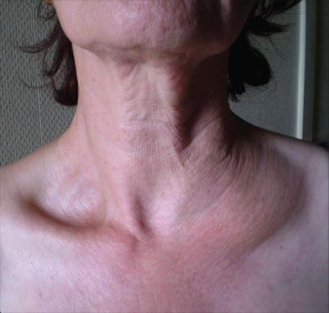 swelling left side of neck above collarbone recurrent lymphangiectasia of the left supraclavicular