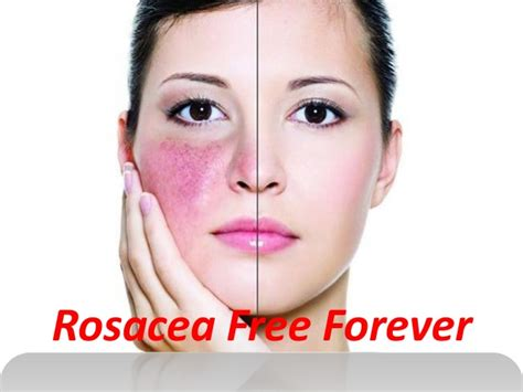 best treatment for acne rosacea rosacea free forever is the best treatment for curing rosacea