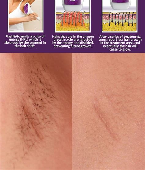 silk bella flas versus me hair removal silkn hair removal newhairstylesformen2014 com
