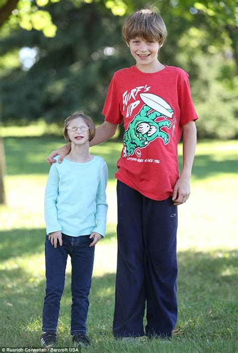 Year Old Ontario Girl With Primordial Dwarfism Weighs The Same As A Two Year Old Daily Mail