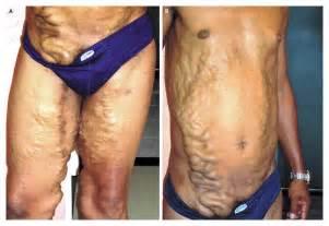 Tortuous varicosities in chronic schistosomiasis nejm