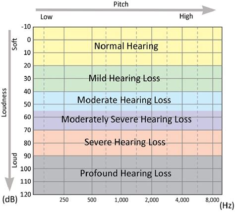 hearing range molecular modelling based investigations of a mutant protein in patients with hearing
