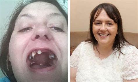 Mum all smiles with teeth makeover   after dentist hell