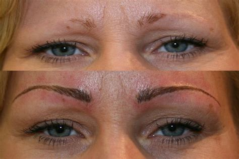 tattooed eyebrows gone wrong semi permanent makeup correction and removal i