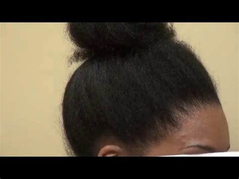 hairline lowering african american female www mhtaclinic com videolike