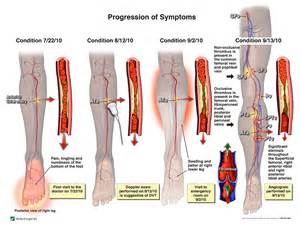 vein thrombosis treatment at home vein thrombosis dvt home