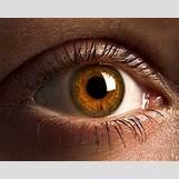 Cataract Surgery   300 x 240 jpeg 15kB