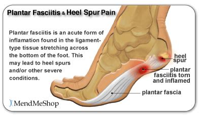 Planters Spur by Plantar Heel Spur Sore Toes