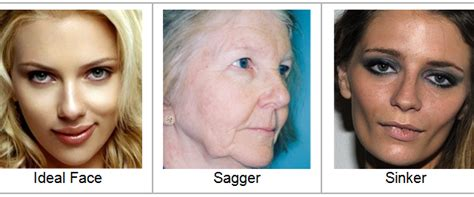 hairstyles for an aging face with jowls skin tightening archives kristin gunn austin botox