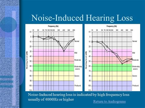 your hearing action on hearing loss rnid noise induced hearing loss action on hearing loss rnid