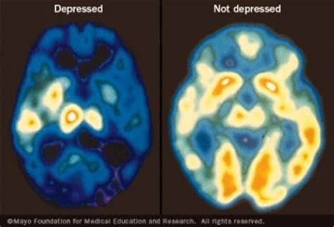 test depressione ansiosa basic questions about bipolar depression 171 talk
