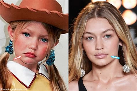 gigi hadid lip injections gigi hadid lip injections does gigi hadid have cosmetic