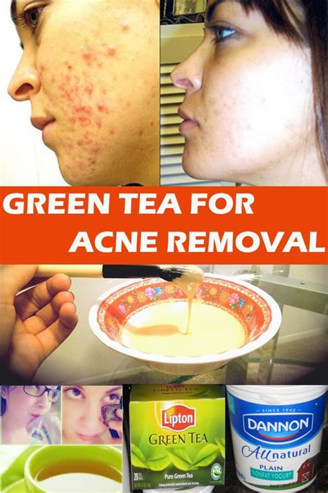 Acne Malam Acne Green Tea how to use green tea to remove acne fast for my