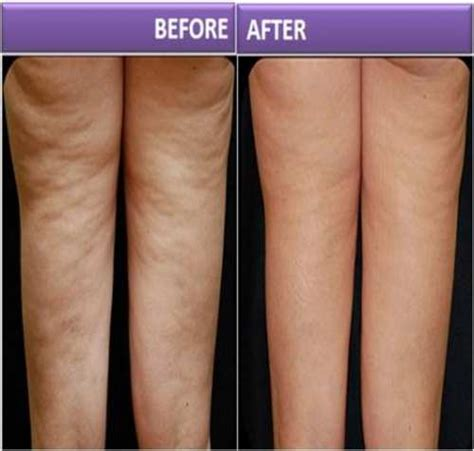 Cellulite 101 Treatment by 6 Wonderful Methods To Treat Cellulite