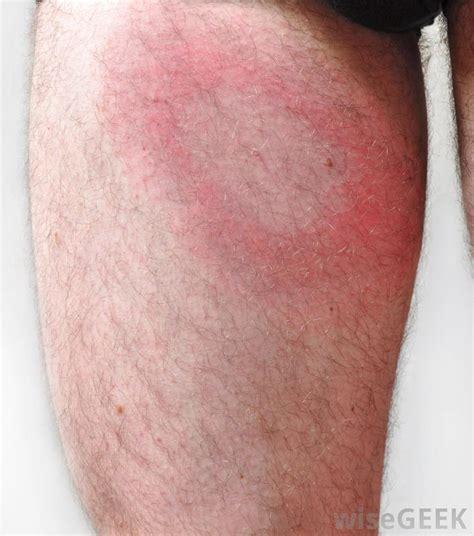 rash with white center