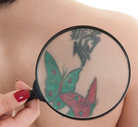 tattoo removal charlotte regrettable ink your ultimate guide to removal in