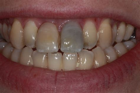 4 Missing Front Teeth Implants | missing front teeth before after photos dental implants