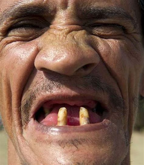 Ugly Smile Meme - ugly teeth pictures 12 pics funnypica