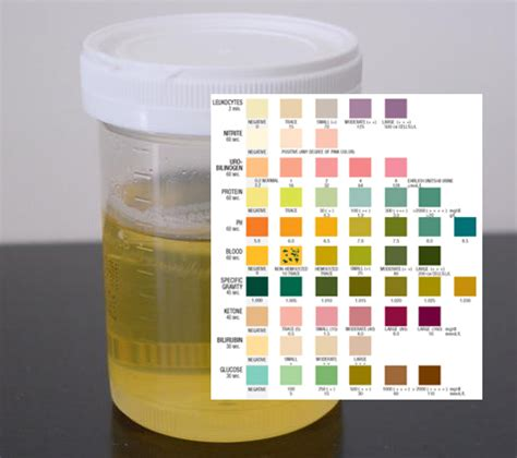 urinalysis urinalysis test urinary tract infection uti