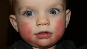 Диатез у ребнка на щеках чем лечит фото