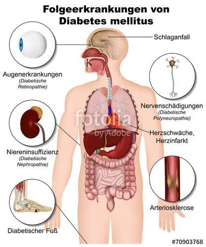 wann wird ms heilbar sein quot folgeerkrankungen diabetes mellitus quot stockfotos und