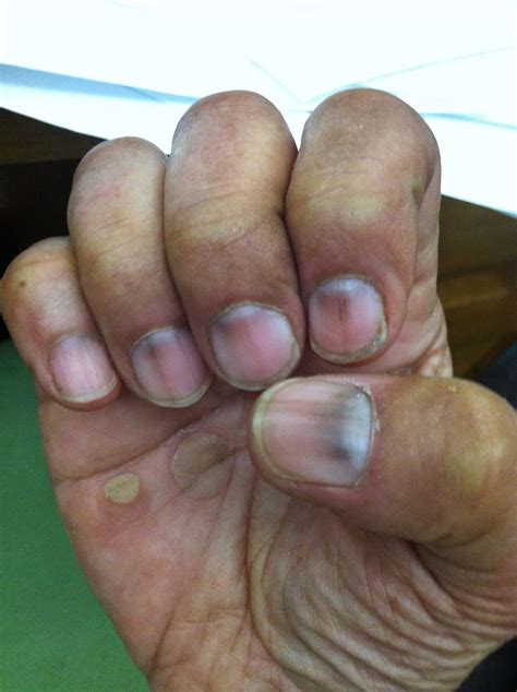 finger discoloration images reverse search