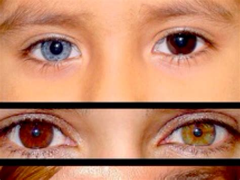 2 different eye colors different eye color by savanna meyer