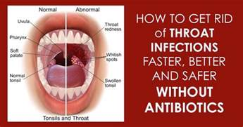 how to treat strep throat at home home remedies for strep throat infection that are safe