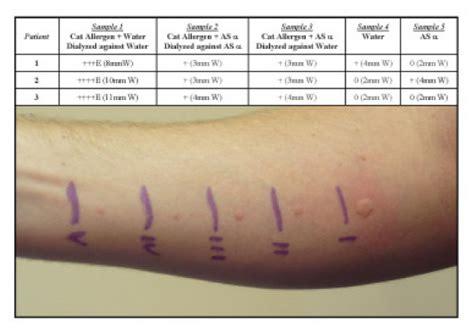 skin test exposure to aluminum sulfate alters the allergen skin